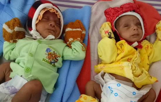 Tiny twin miracle girls survive at Jivanta Hospital-
